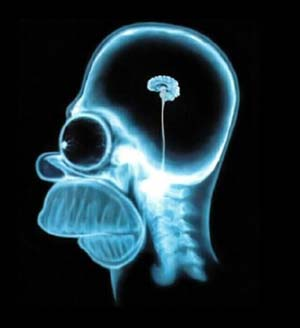 mozak-3