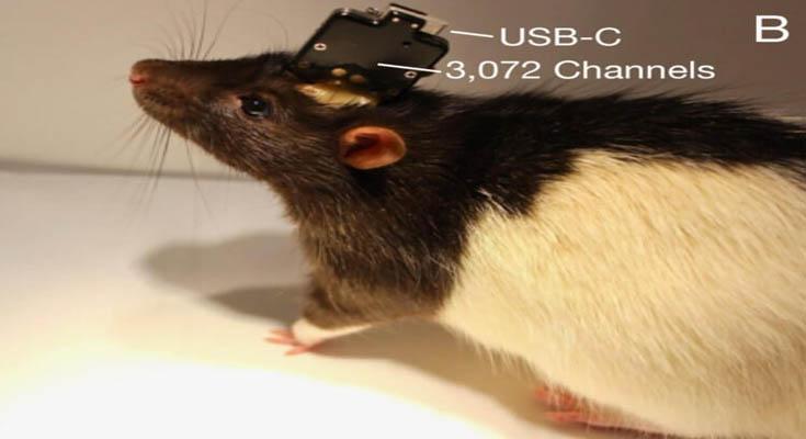 Neurolink implantati čip